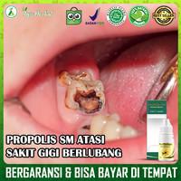Obat Herbal Perontok Gigi Berlubang | Propolis SM Asli 100% Original