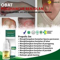 Obat Herbal Ampuh Penghancur Benjolan Lipoma | Propolis Sm Brazil Asli