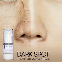 ERTOS Dark Spot Treatment Concentrate 15ml