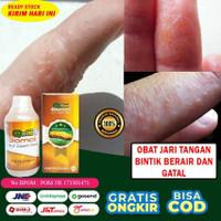 Obat Gatal Bintik Berair Di Tangan, Alergi, Herbal QnC Jelly Gamat