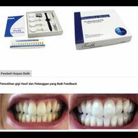 ready ya kak Bahan Pemutih gigi /Bleaching Teeth Profesional Beauty