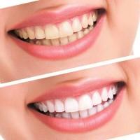 Oral Hygiene Teeth Whitening Strip / Pemutih Gigi