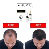 Anuva Paket Hair Tonic + Hair Serum Penumbuh Rambut Premium Terpercaya