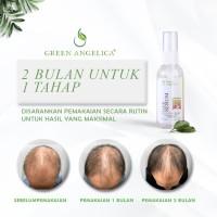 vitamin anti dht green angelica