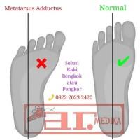 sepatu koreksi orthopedi ctev anak balita metatarsus adductus