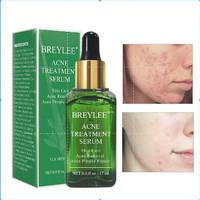 BREYLEE Acne Treatment Serum Face Essence Anti Acne Scar Cream Whiteni
