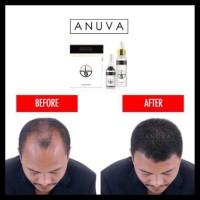 PRODUK BARU Anuva Haircare Tonic dan Serum Rambut Botak dan Rontok