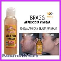 Termurah Toner Cuka Apel Share In Bottle Bragg Apple Toner Jerawat