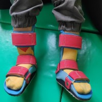 AFO / Sepatu Ortopedi / Sepatu Koreksi / 0.8.1.3.8.0.8.0.5.5.2.1