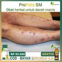 Propolis Brazil Asli - Obat Darah Manis Bekas Koreng DiKulit - Prurigo