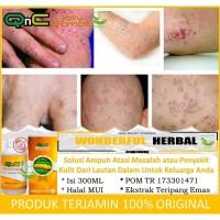 QnC Jelly Gamat - Obat Gatal Kulit dan Infeksi Alergi Ampuh & Original
