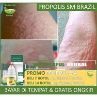 Obat Gatal, Alergi, Bentol, Biduran Bagus dengan Propolis SM Original