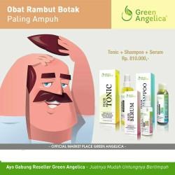 Produk Rambut Rontok Botak (Penumbuh Rambut Herbal) By Green Angelica