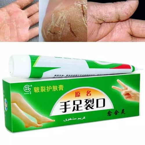 Foto Produk Salep Perawatan Tangan Dan Kaki Kering / Pecah-Pecah dari JM.mart