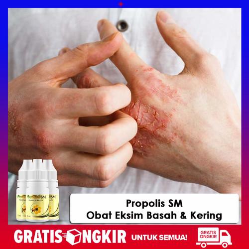 Foto Produk Obat Eksim,Obat Oles Eksim Kering Menahun, Exim Basah - Propolis SM dari Safitri Herbal