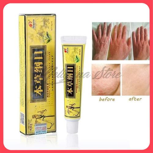 Foto Produk Import Ori Salep Herbal Untuk Psoriasis Dermatitis Dan Eczema dari Meliyana Store