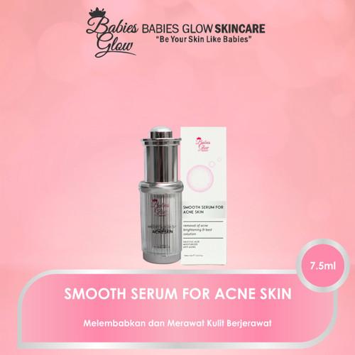 Foto Produk Smooth Serum for Acne Skin dari BabiesGlowAesthetic