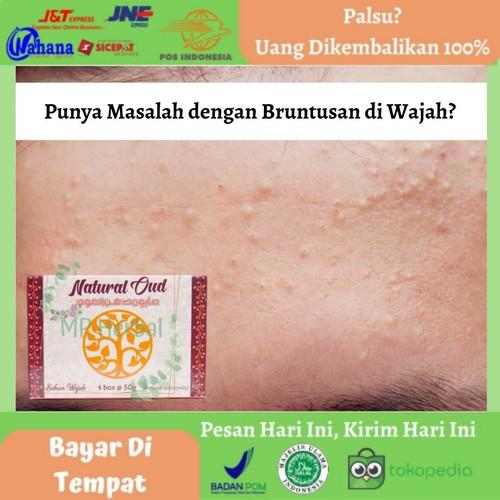 Foto Produk Sabun Bruntusan Wajah, Penghilang Bruntusan Wajah - Natural Oud @50gr dari MP Herbal