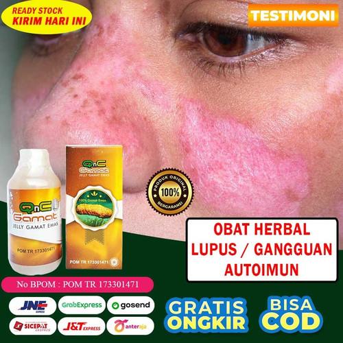 Foto Produk Obat Lupus / Autoimun Herbal Qnc Jelly Gamat 100% Asli Alami Testimoni dari Dijeksi Herbal