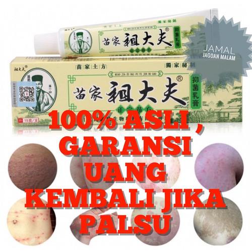 Foto Produk Obat salep gatal gatel kulit kurap jamur bakteri ZUDAIFU herbal cina dari JAMAL-JagoanMalam