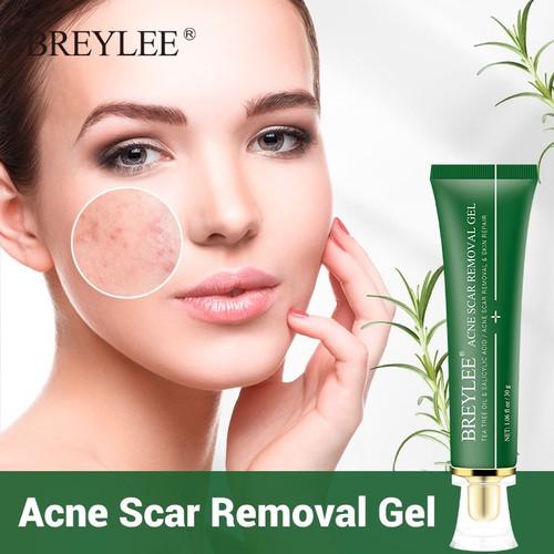 Foto Produk Breylee Gel Penghapusan Jerawat Bekas Luka Pemutih Kulit 30g Acne Scar dari Bursa Cosmetik Murah
