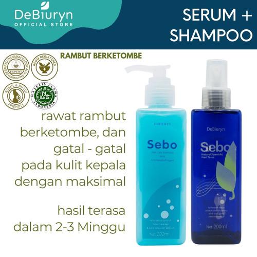 Foto Produk Sebo Shampoo + Hair Tonic   Rambut Berketombe   Anti Dandruff dari Debiuryn Dermacosmetics