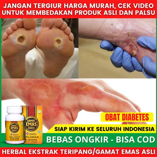 Foto Produk Obat Khusus Diabetes Walatra Gamat Emas Kapsul Gold Max Real Testimoni dari Toko Acep Herbals