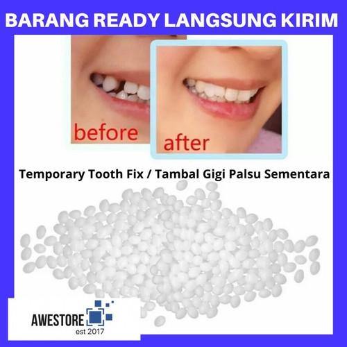 Foto Produk DIY Temporary Tooth Repair Kit Denture Teeth Lem Gigi Palsu Tambal - 5 Gram dari Awestore2017