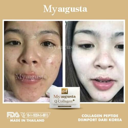 Foto Produk Q COLLAGEN MY AUGUSTA THAILAND / AUGUST DIETARY SUPPLEMENT dari Raja Kosmetik Murah