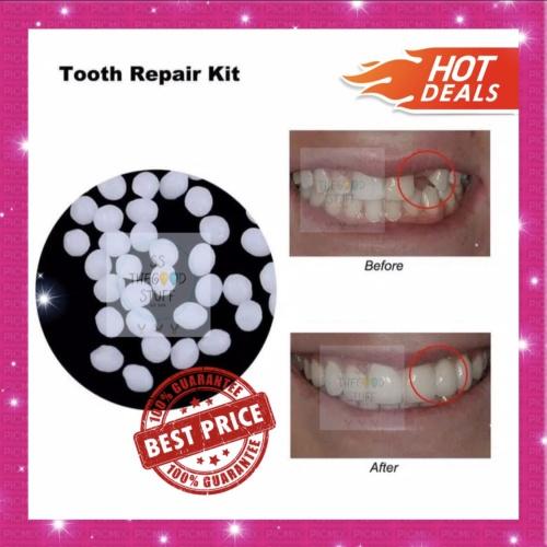 Foto Produk Temporary Tooth Repair Kit / Denture Adhesive / Lem Gigi / Gigi Palsu. dari SS TheGoodStuff