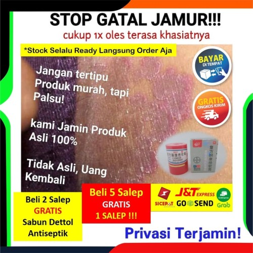 Foto Produk Salep Obat Gatal Selangkangan Jamur Eksim Jerawat dijamin Manjur dari Baraya Store