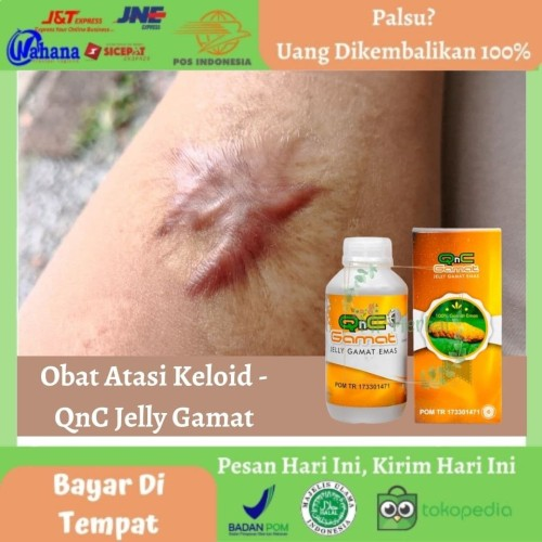 Foto Produk Obat Keloid, Keloid Bekas Operasi, Luka, Jerawat - QnC Jelly Gamat dari MP Herbal