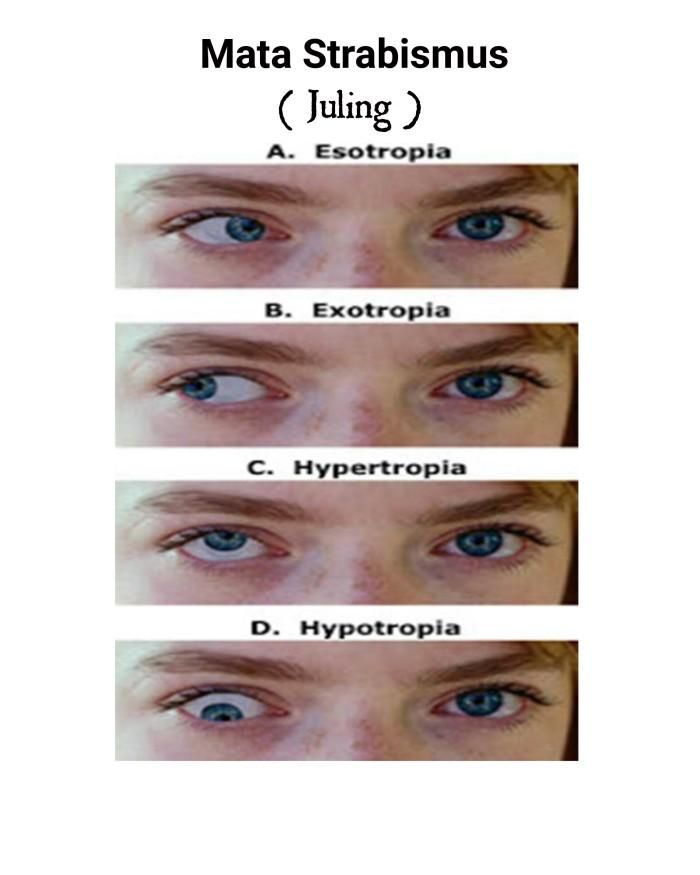 hyperopia strabismus 6 3